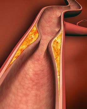 Homocystein_Arterie-mit-Plaque